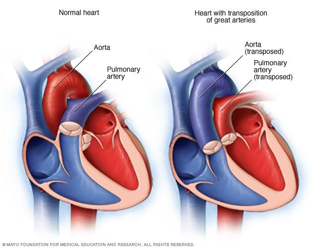 Transposition of the Great Arteries – All you need to know