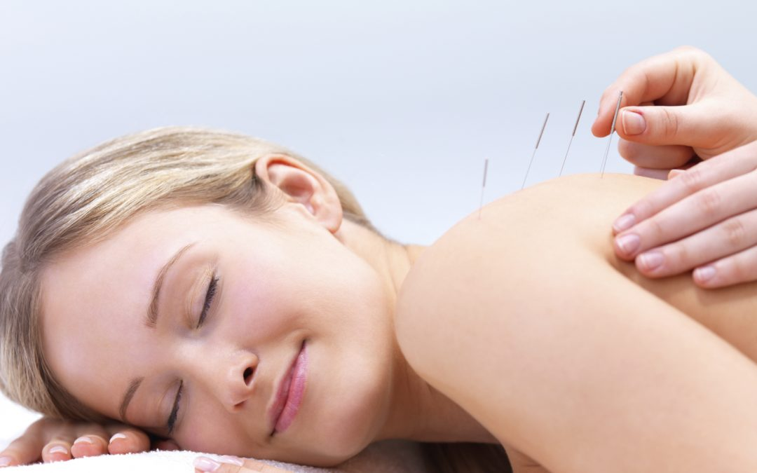 Acupuncture, What Is That?